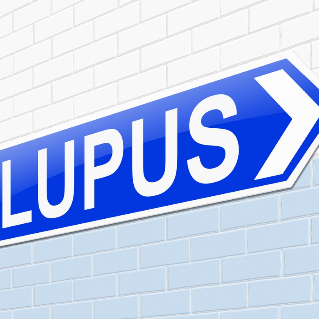 Systemic Lupus Erythematosus Patients Suffer From Cardiac Abnormalities