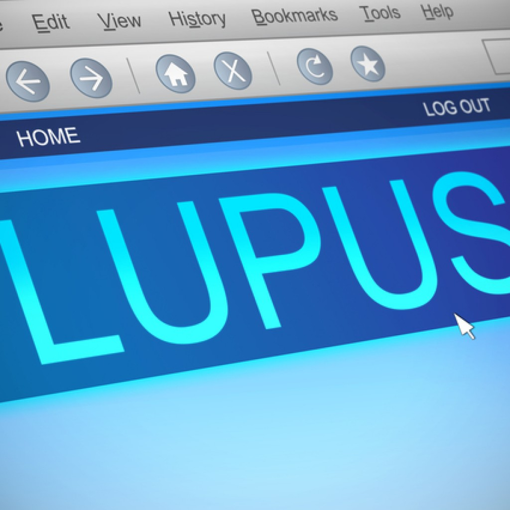 Study Highlights Systemic Lupus Erythematosus and Environmental Risk Factors