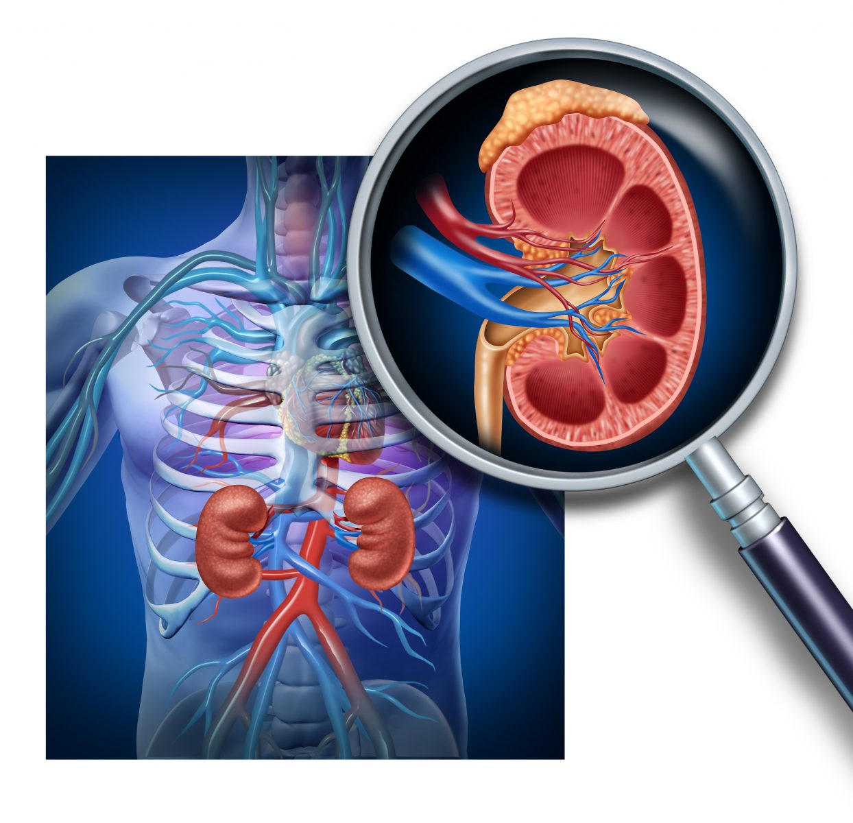 Lupus and the Kidney Disease, Lupus Nephritis: An Expert's View