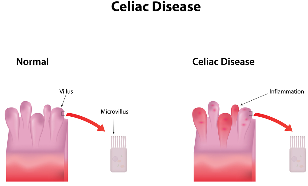 First-degree Relatives And Spouses of Celiac Disease Patients At Higher Risk Of Autoimmune Diseases
