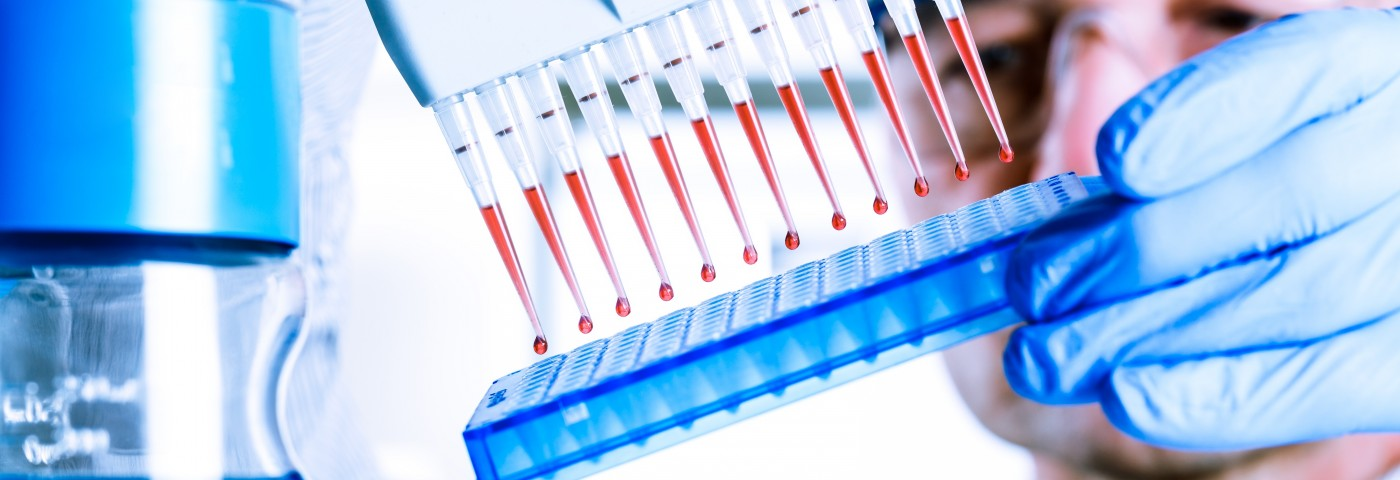 SLE Biomarker Assay Appears to Overcome Disease's Heterogeneity