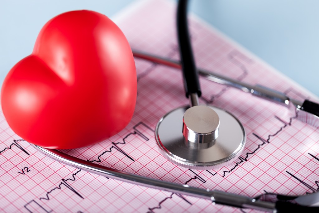 SLE Patients May Be at Higher Risk of Atherosclerosis