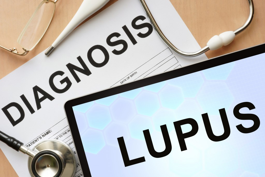 Study Reports Rare Case of Idiopathic Intracranial Hypertension with Onset of Lupus in Teenage Girl