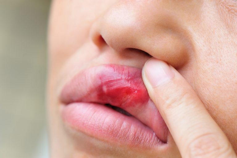 Mouth ulcers and lupus