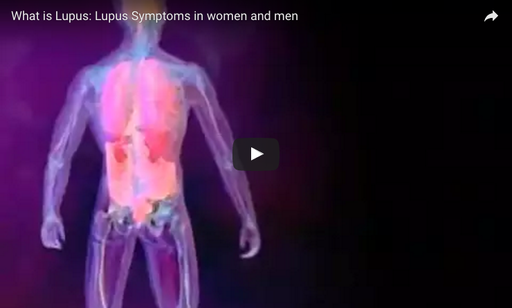 lupus men women