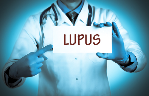 Lupus Patients Decrease Clinical Health Care Use Over Time