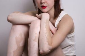 Genes Newly Linked to Skin Disease May Lead to Better Understanding of Lupus