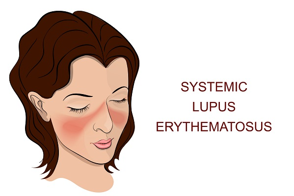 self-esteem and lupus