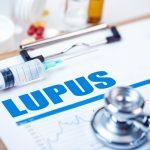 support and lupus