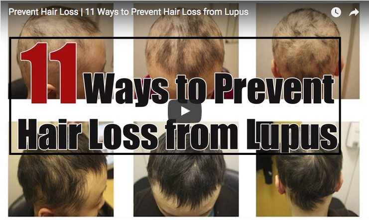 11 Tips To Help Prevent Lupus Related Hair Loss Lupus News Today