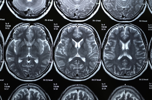 Stroke Risk in SLE Patients May Be Linked to Cerebral Small Vessel Disease, Study Finds