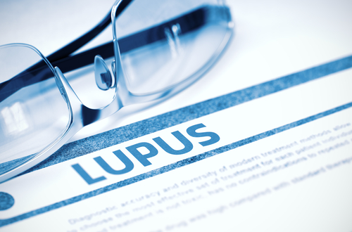 First US Patient Enrolls in Phase 2b Study of Therapeutic Vaccine for Lupus