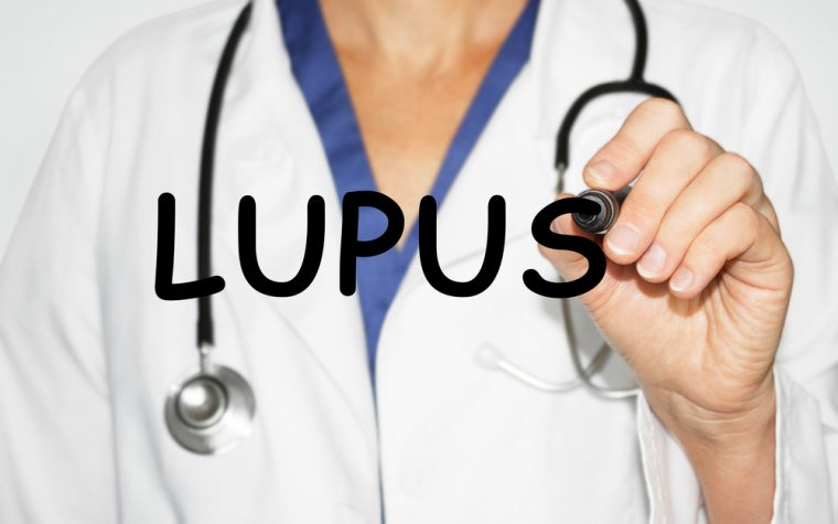 Lupus diagnosis tool