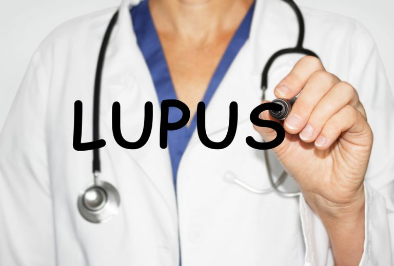 worry and lupus