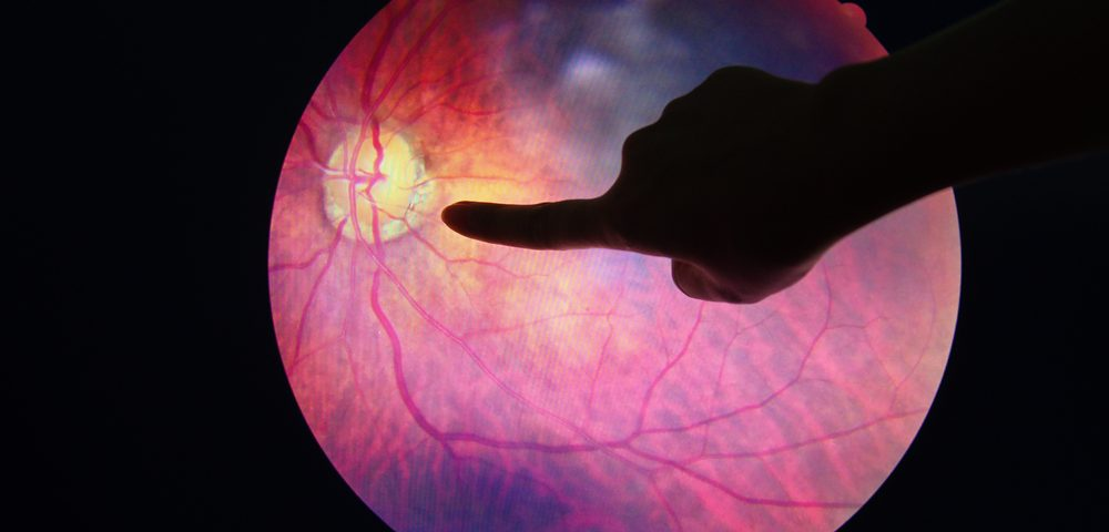 Lupus Eye Damage May Provide a Window Into Disease Activity