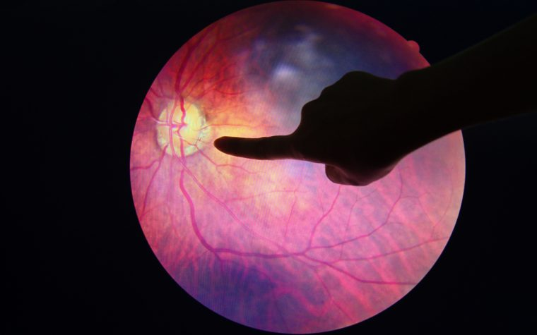 Lupus retinopathy, or eye damage, may be linked to more severe disease.