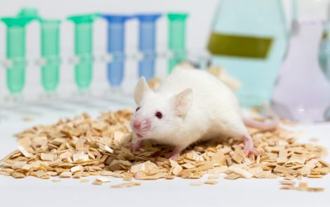 GluN2A Protein Subunit in Nerve Cells May Be Treatment Target in SLE, Mouse Study Suggests