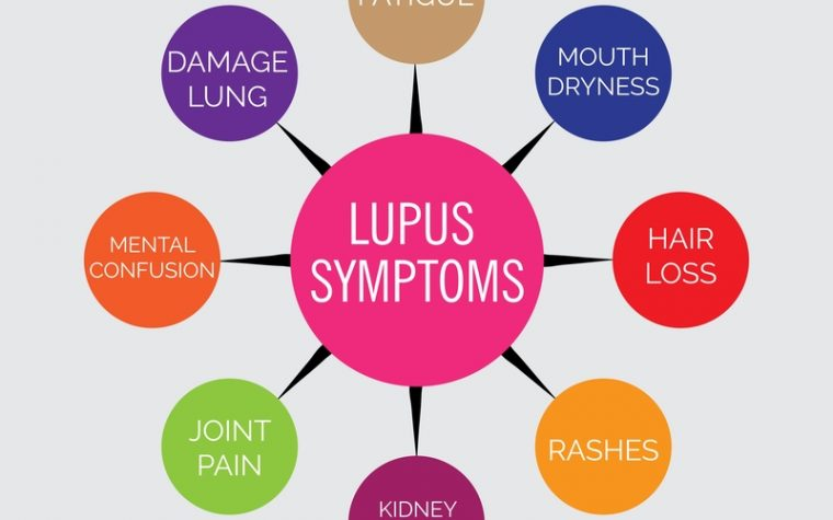Lupus without a partner