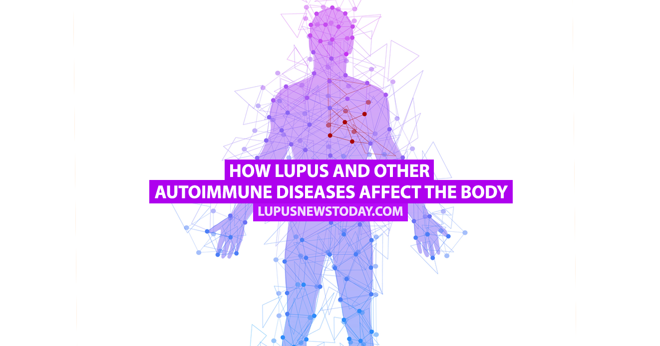 lupus dating website