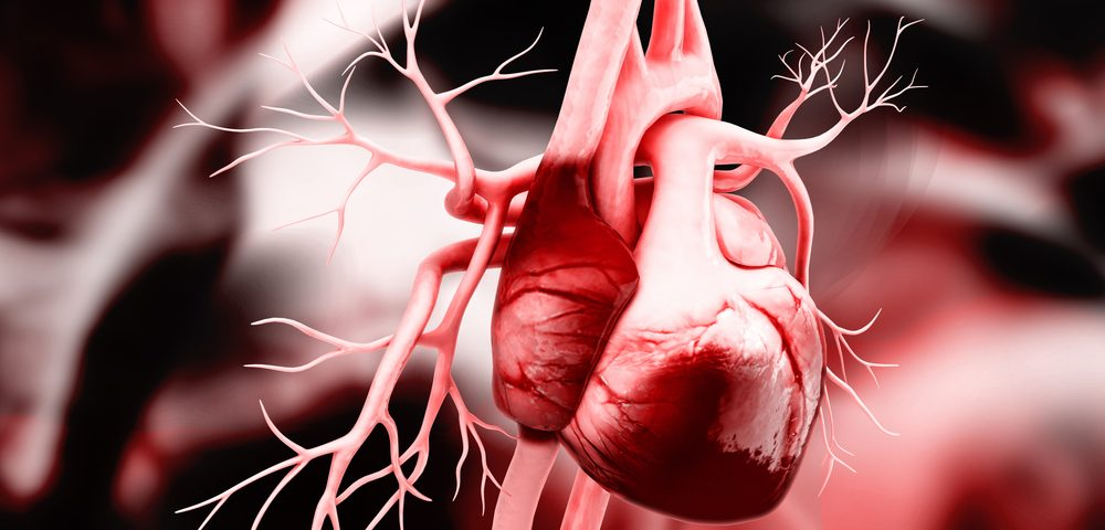 Bisphosphonates, Plus Vitamin D, May Help Prevent Heart Disease in SLE Patients