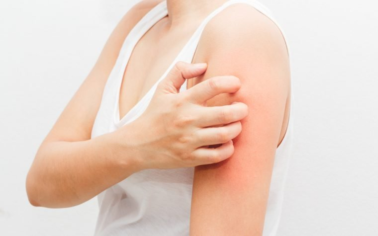 Lupus and allergy condition