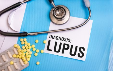 Native Americans Diagnosed with Lupus at Earlier Age, Study Reveals