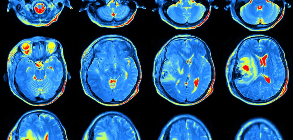 Immune Response Regulator Interferon-Gamma Is Associated with Cerebral Atrophy in Lupus, Study Suggests