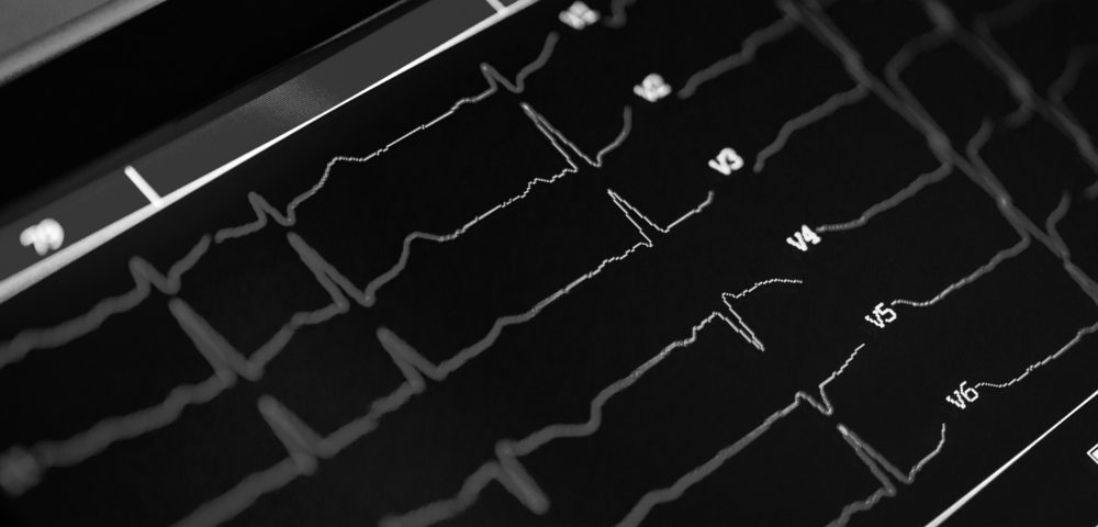 Lupus, Other Autoimmune Diseases Linked to Increased Risk for Cardiovascular Diseases and Death