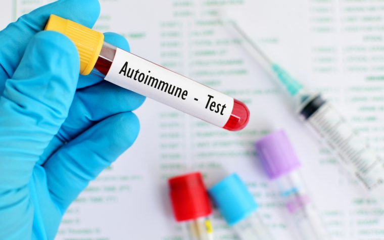 autoantibodies identify at-risk patients