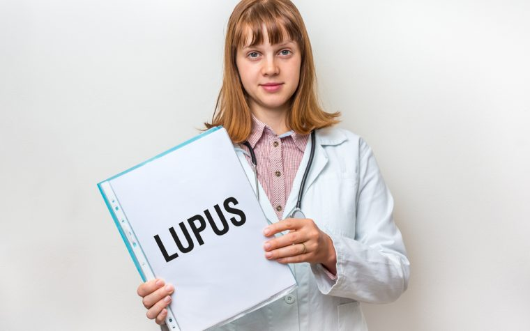 lupus in young women