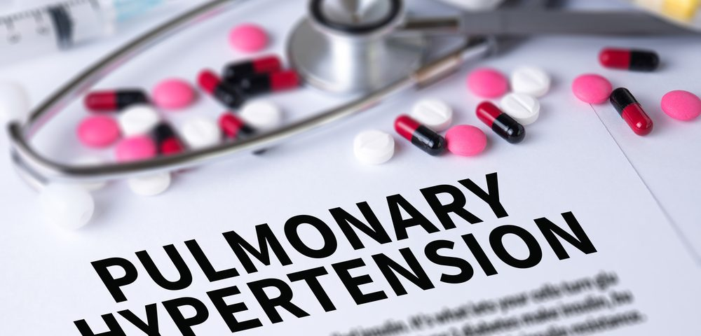 Pulmonary Arterial Hypertension Is Common Complication in Lupus Patients, Study Finds