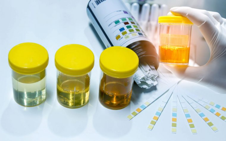 protein levels in urine